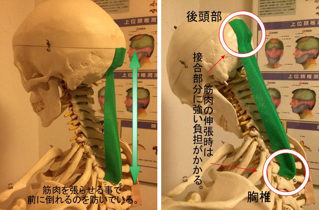 スマホ性頚椎症候群