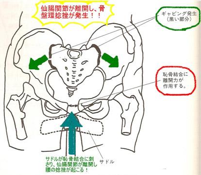 自転車は腰痛を作る?