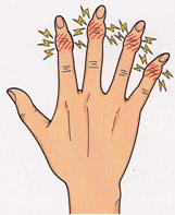 女性にみられる指の変形性関節症
