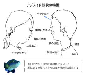 アデノイド顔貌の特徴